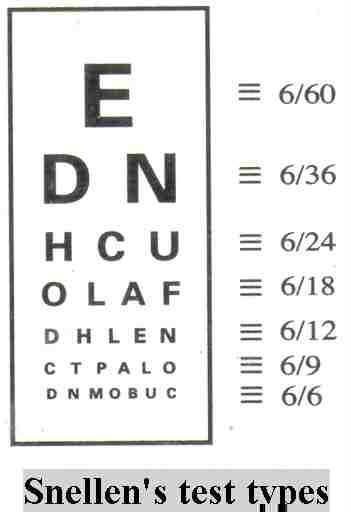 Clear your doubts about Eye-Vision standards for Railway Exams